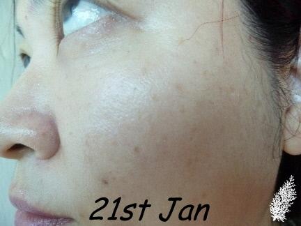 Hom opathie contre les boutons d 39 acn apparaissent - Masque anti bouton maison ...
