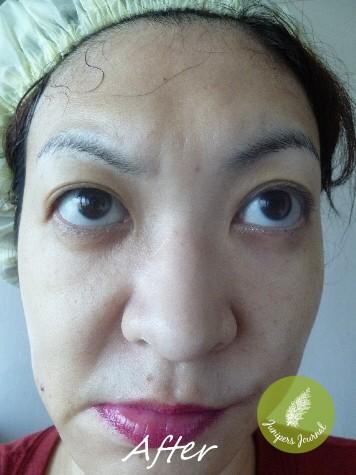 after lan mask