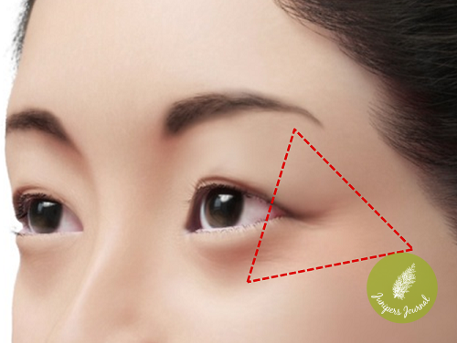 VISUEL 3D MRG YEUX ASIE - LATERAL TRIANGLE